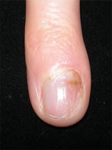 Paronychia before treatment