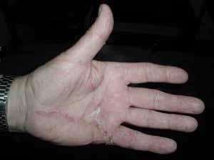 Duputyren's Disease by Dr. David Nelson