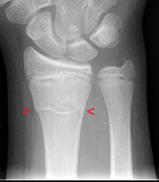 Buckle Fracture by Dr. David Nelson, MD
