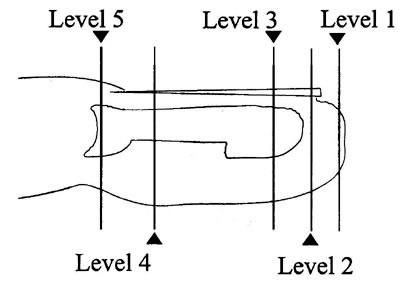 fingertip amputations by dr david nelson. Black Bedroom Furniture Sets. Home Design Ideas