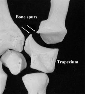 Treatment for Removing Finger Bone Spur - E Healthy